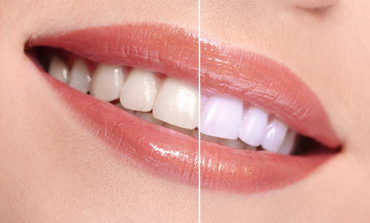 Ideal teeth whitening